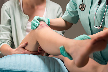 Woman with knee arthritis preparing for Stem Cell Therapy